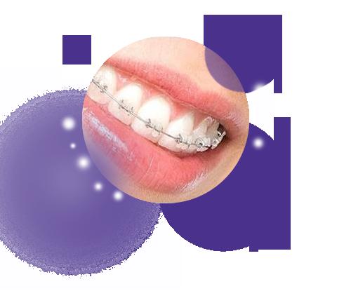 мгновенное отбеливание зубов в домашних условиях
